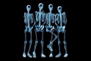 skeleton humor x-rays